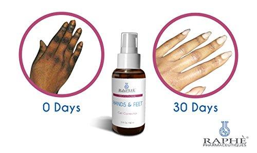 2 botellas de las manos y pies piel blanqueamiento polifenol LIQ. Para hidroquinona dañadas o descoloridas de las manos, pies, talones y dedos de los pies 60ml cada
