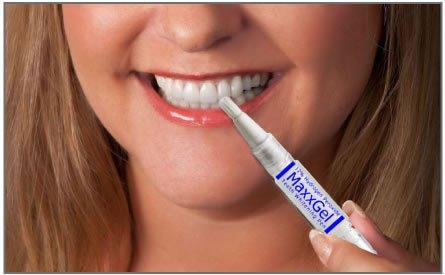 MaxxGel dientes que blanquean la pluma. 12% peróxido de hidrógeno para los dientes que blanquea en el ir! Conjunto de 2 plumas.